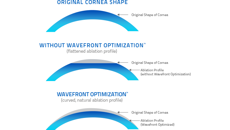 Wavefront-Illustration-Colby-Stewart-MD-Houston-Texas-LASIK-Vision-Correction.jpg