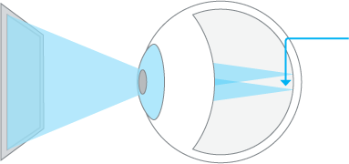 Astigmatism Before LASIK
